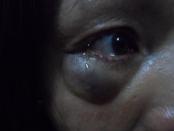 Schwellung (Auge) - (Augen, Schlägerei, schulung)