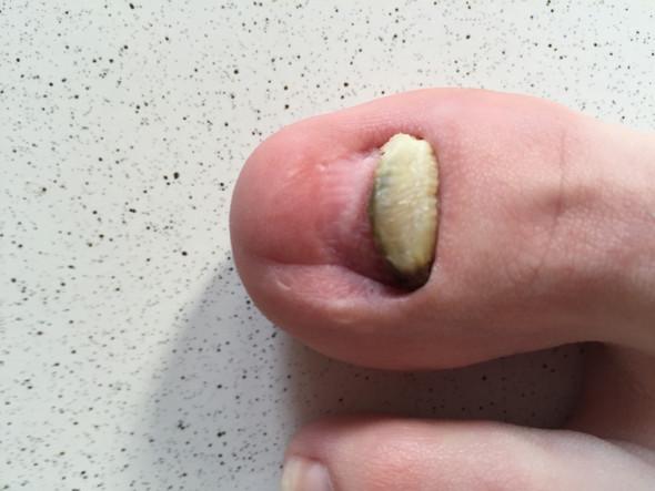 Gribok der Nägel die Abtrennung die Nägel
