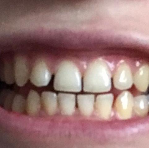 Sehen die zahnabstände sehr schlimm aus?