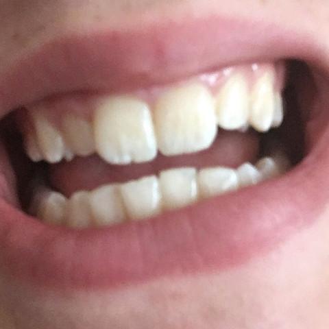 Zähne von OliElisa - (Mädchen, Jungs, Zähne)