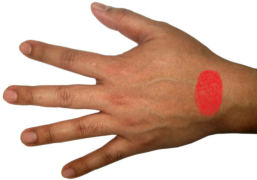 Sehnenscheidenentzündung Bitte Helft Mir Schmerzen Verletzung Hand