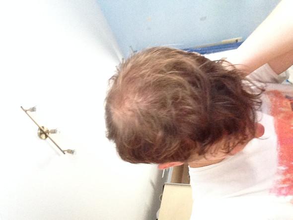Dunne haare glatze