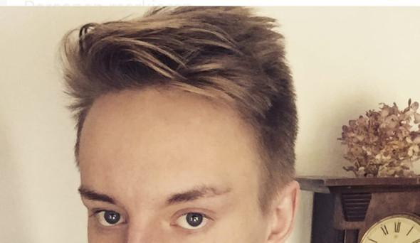 Sehr hohe Stirn - wie am besten retuschieren? (Körper ...