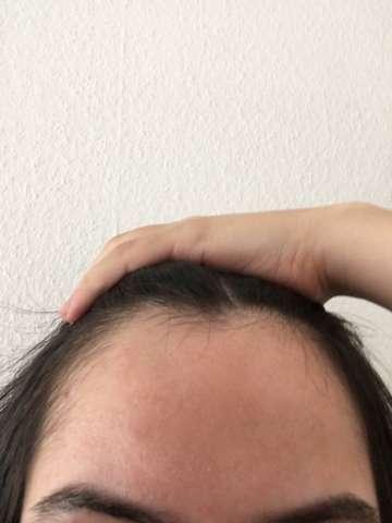 Sehr hohe Stirn (bild)?