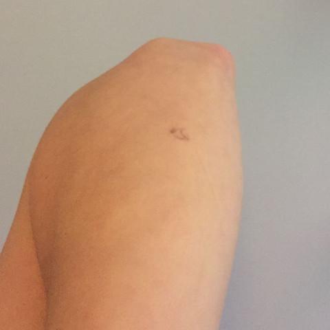 Ellenbogen - (Tattoo, entfernen)