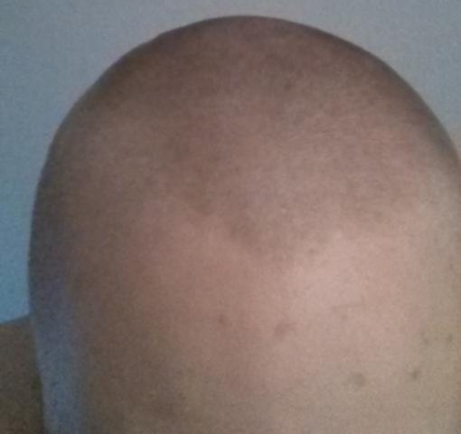 Sehr Kurze Blonde Haare Dunkler Bekommen Mann Färben