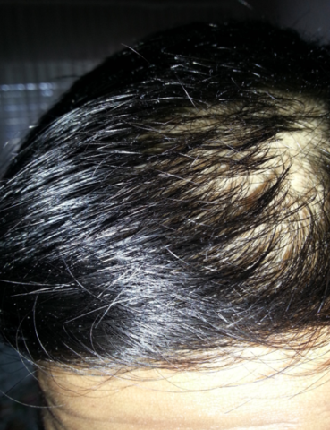 sehr starker haarausfall mit 17 haare haut kopf