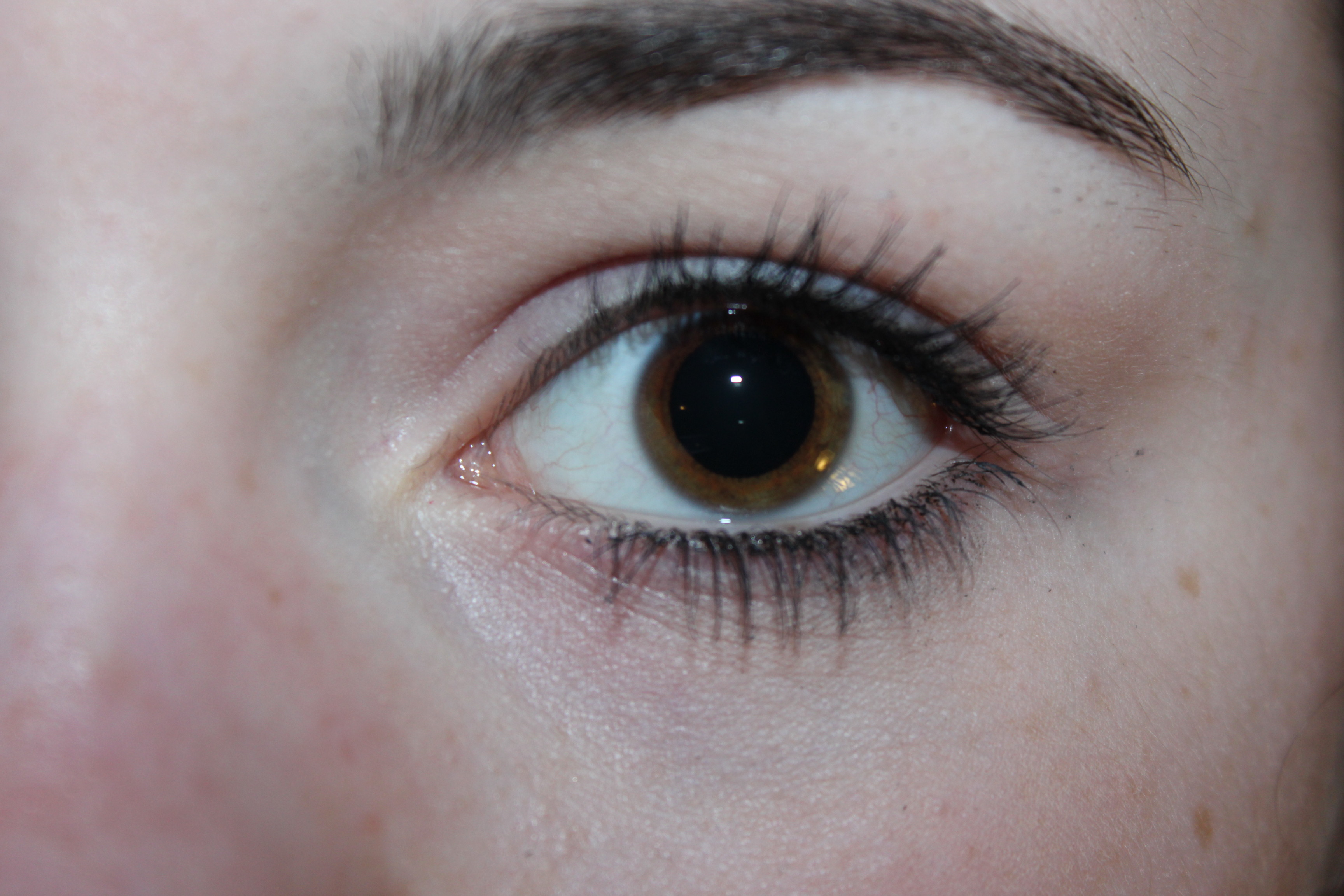 sehr übergroße pupillen? (Augen, Pupille)
