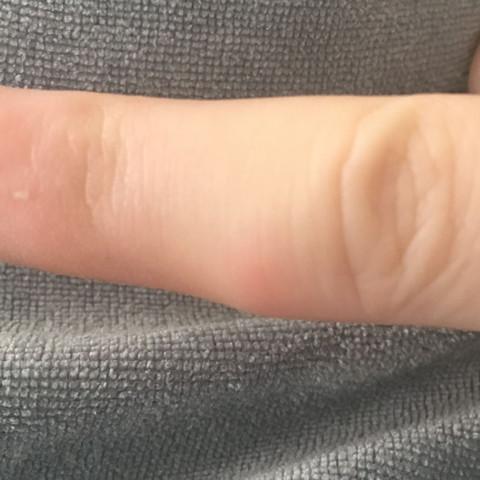 Hier sieht man es ein bisschen - (Finger, angeschwollen)