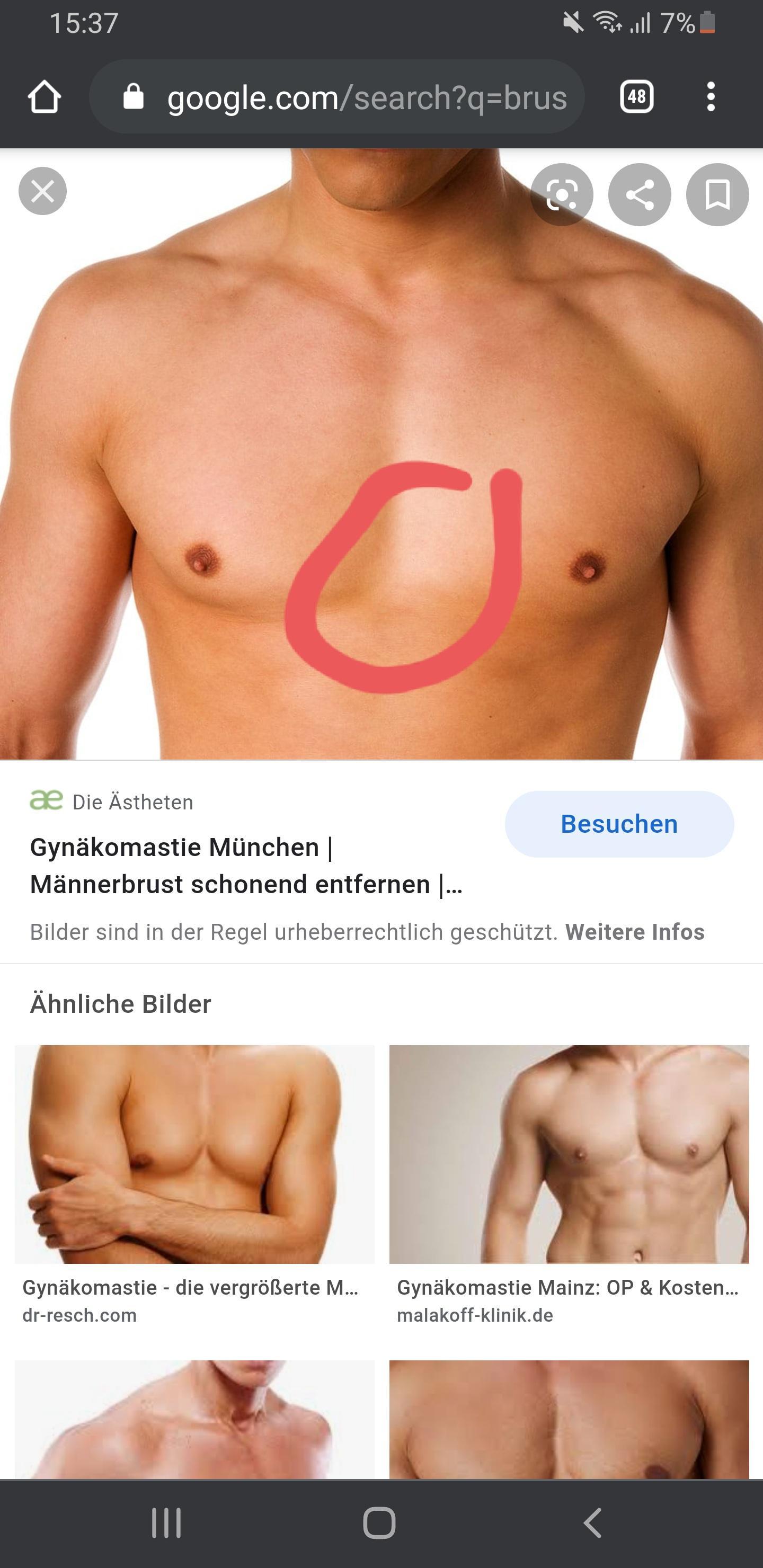 Seit einiger Zeit blauer Fleck an der Brust? (Gesundheit