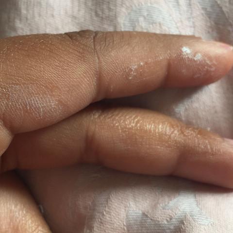Am Zeige;Mittelfinger und am Daumen  - (Kleber, Sekundenkleber)