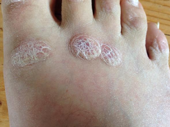 Hornhaut Fuß Entfernen