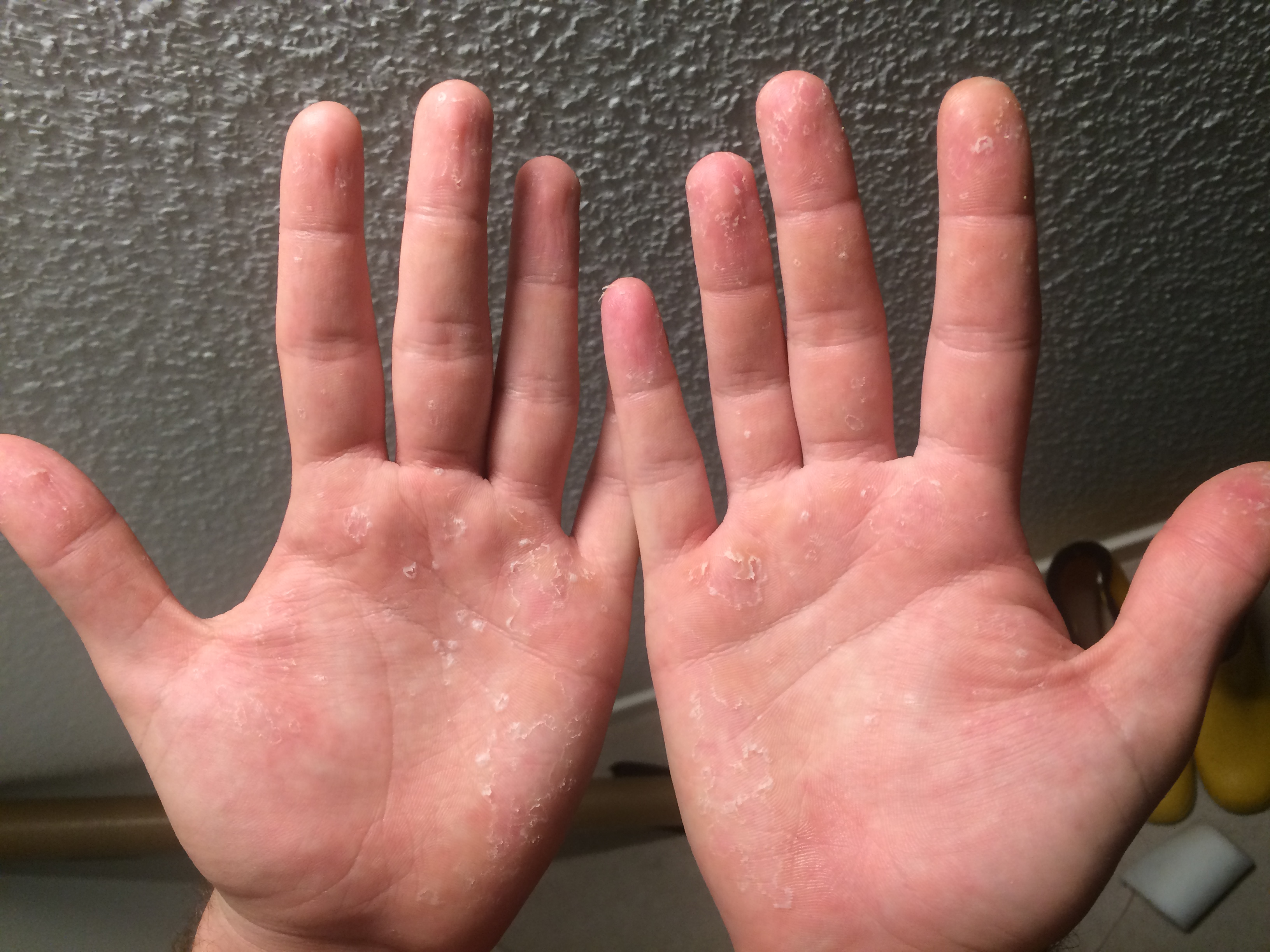 Was tun gegen verstauchten finger