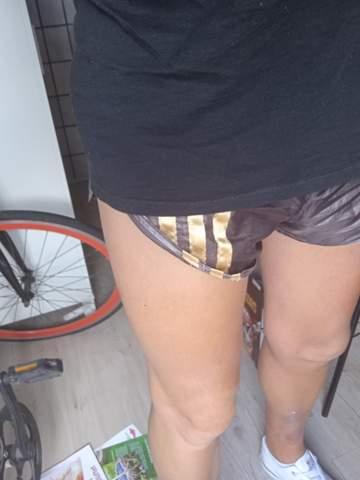 Shorts wölbt sich während des Gehens nach oben: Was kann ich tun?