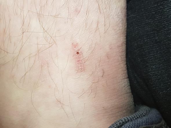 Sieht Das Nach Flohbissen Aus Haut Hautpflege Hautprobleme