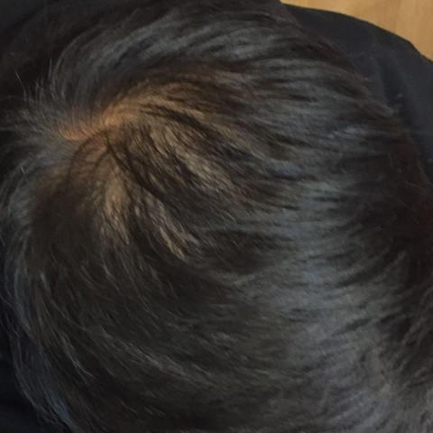 Sieht das normal aus? - (Haarausfall, männlich, Wirbel)