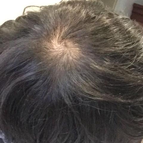 Eins von früher - (Haarausfall, männlich, Wirbel)