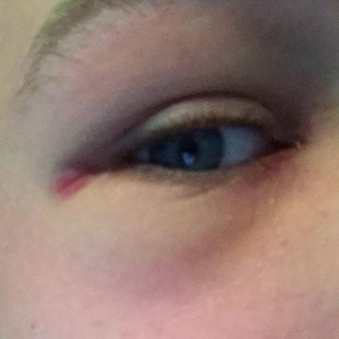 Am rand vom Auge ist es blau - (OP, schwellubg)