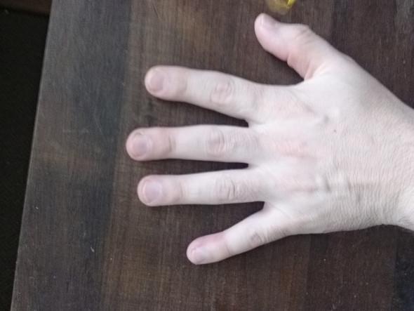 links - (Gesundheit, Meinung, Fingerkuppe)