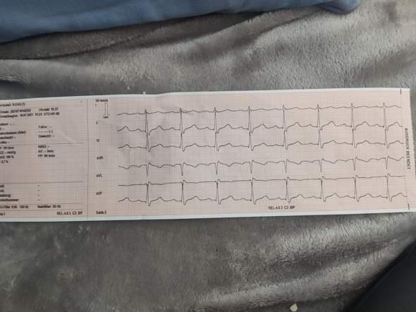 Sieht man es , wenn man einen Herzinfarkt hatte im EKG?
