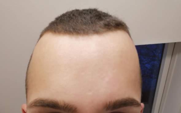 Glatze mit 20