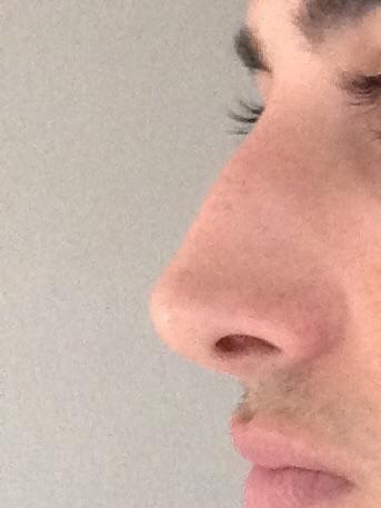 Sieht meine Nase sehr schief aus? (Gesundheit, Beauty)