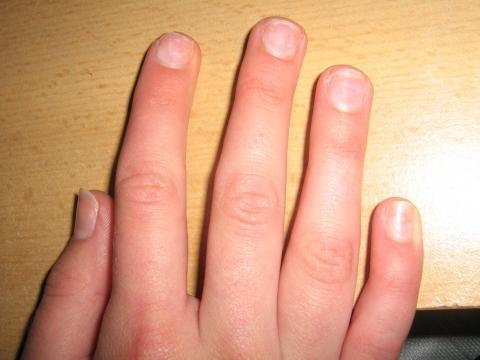 meine rechte hand - (Schwangerschaft, Fingernägel, Pilze)