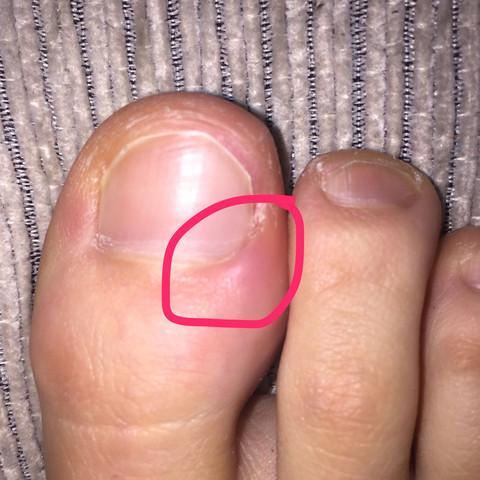 Rote Stelle - (Nägel, nagelpflege, Zehennagel)
