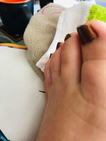 Fußzeh gebrochener Einen gebrochenen