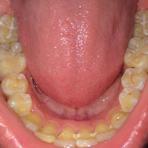 Ich weiß meine Zähne sind nicht die besten. - (Zahnarzt, Loch, bohren)