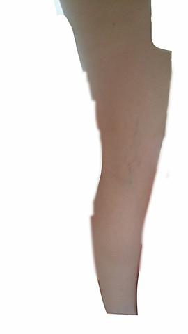 bild 1 - (Arzt, Haut, Beine)
