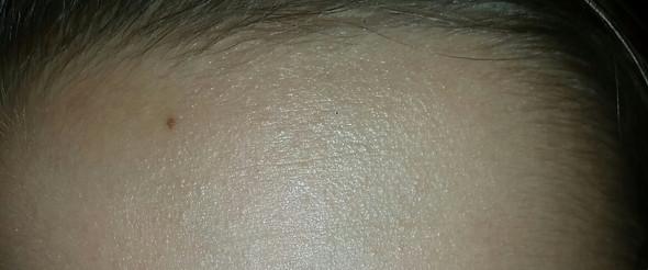 Haut - (Haut, falten)