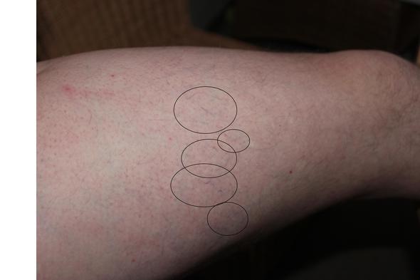 3a - (Schmerzen, Beine, Krampfadern)