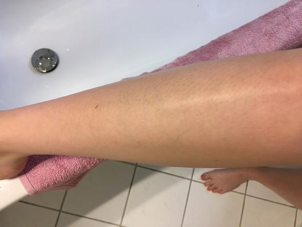 Adern venen haut durchsichtige stark sichtbare Durchscheinende Haut