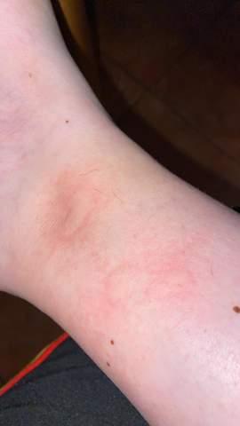 Sind das normale Mückenstiche oder muss ich mir sorgen machen?