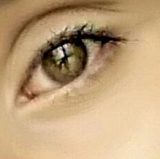 Auge 1 - (Bilder, schlupflider)