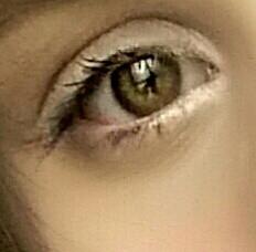 Auge 2 - (Bilder, schlupflider)