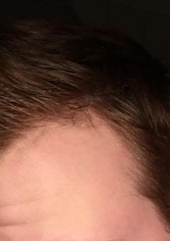 Haare - (Haare, Körper)
