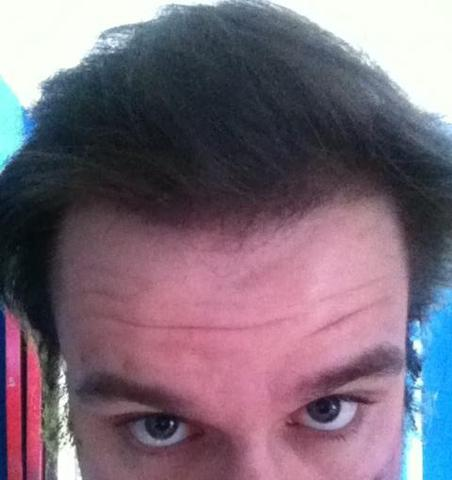 Geheimratsecken leichte Frisuren Männer