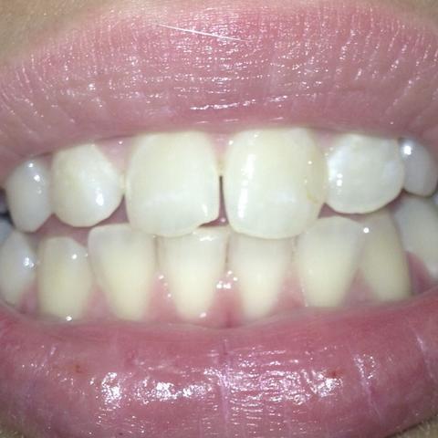1bild - (Zähne, Aussehen)