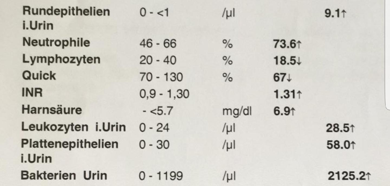 Plattenepithelien urin Urinsediment »