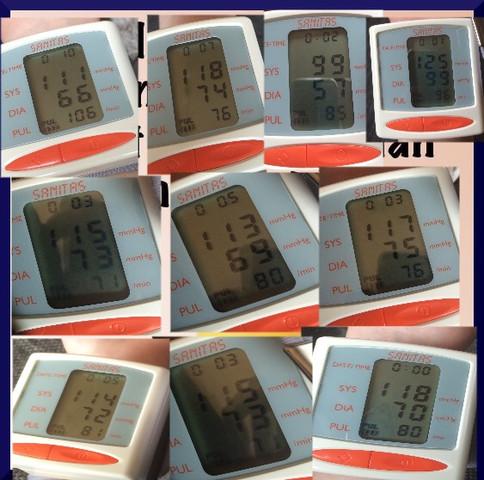 Hier meine Blutdruck und Pulswerte(mehrfach gemessen) - (Übelkeit, Blutdruck)