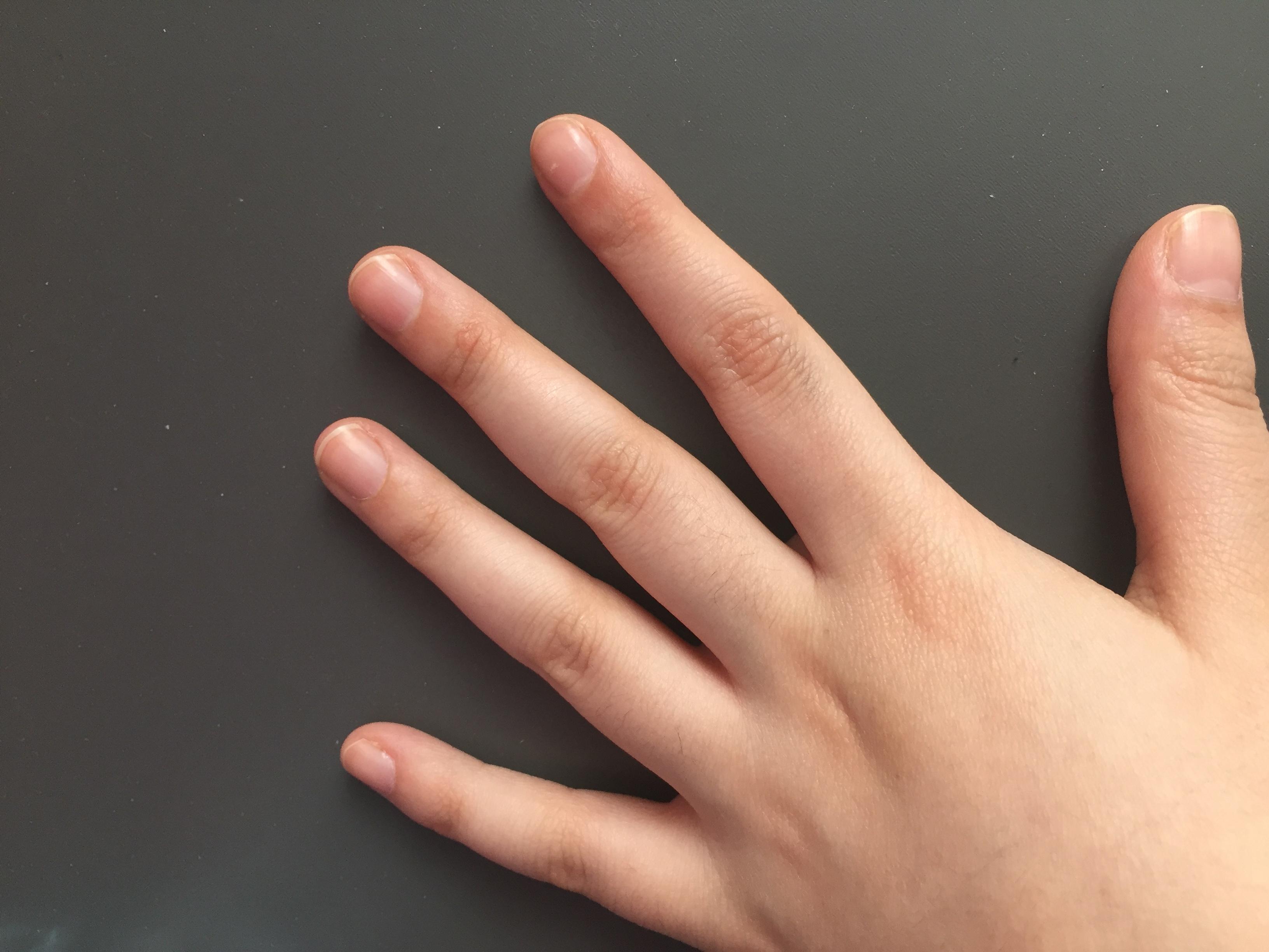 sind meine fingern gel normal bild gesundheit. Black Bedroom Furniture Sets. Home Design Ideas