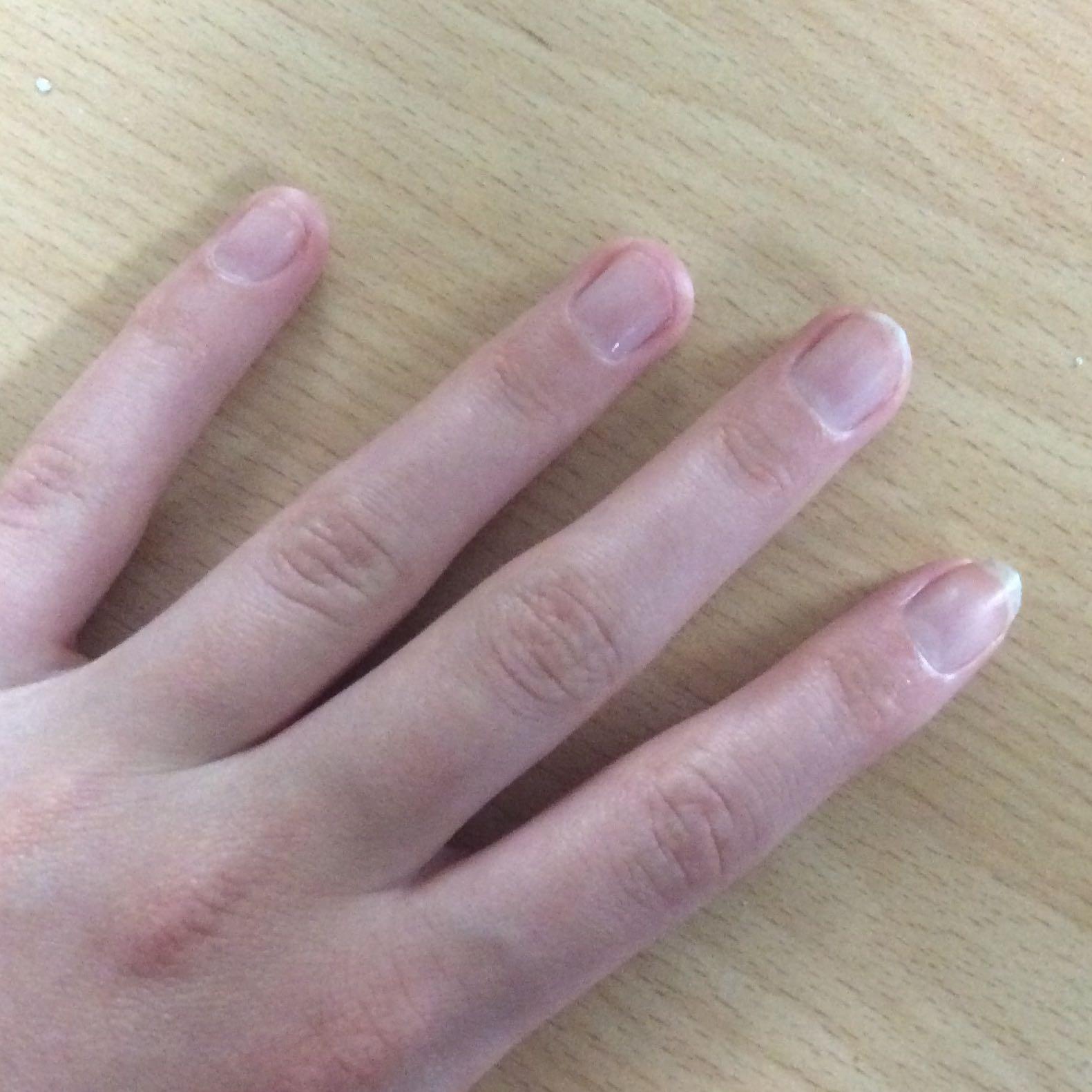 Sind Meine Nu00e4gel Zu Kurz Wie Kann Ich Sie Schneller Wachsen Lassen? (Hand Finger Nu00f6gel)