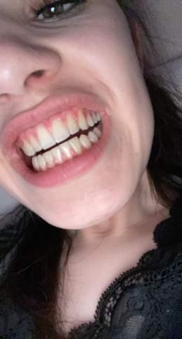 - (Gesundheit und Medizin, Zähne)