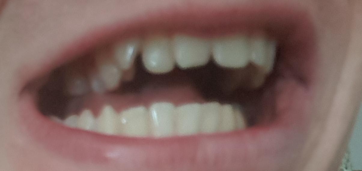 Sind meine Zähne hässlich 44467? (Zahnspange)