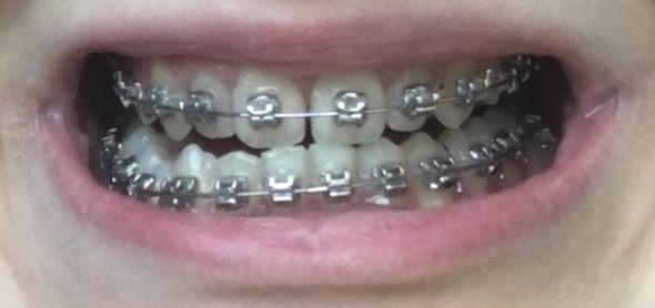 gelbe zähne nach zahnspange