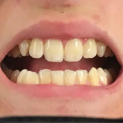 Sind meine Zähne zu gelb oder ist das etwa der