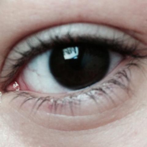 Sind Solche Augen Noch Normal Schwarz