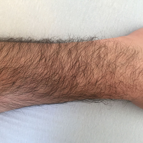 Arme rasieren | How to Shave Your Arms: 10 Steps (with